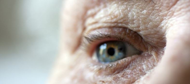 Age-Related Macular Degeneration: a Frustrating Condition to Live with and Treat