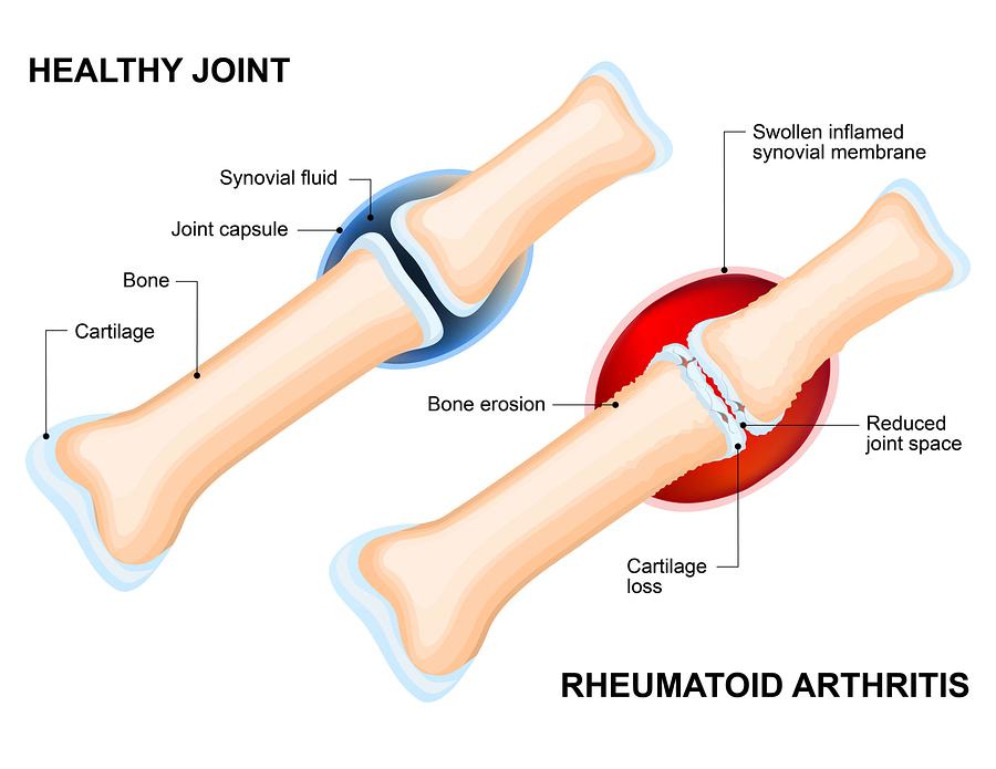 Rheumatoid Arthritis Acts Differently in Women2