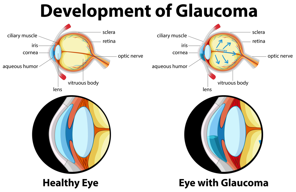 Glaucoma: New treatments and research2